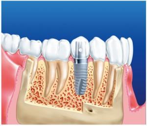 імплантація зубів недорого