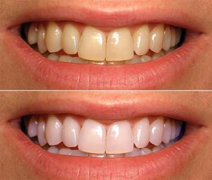 отбеливание очистка зубов
