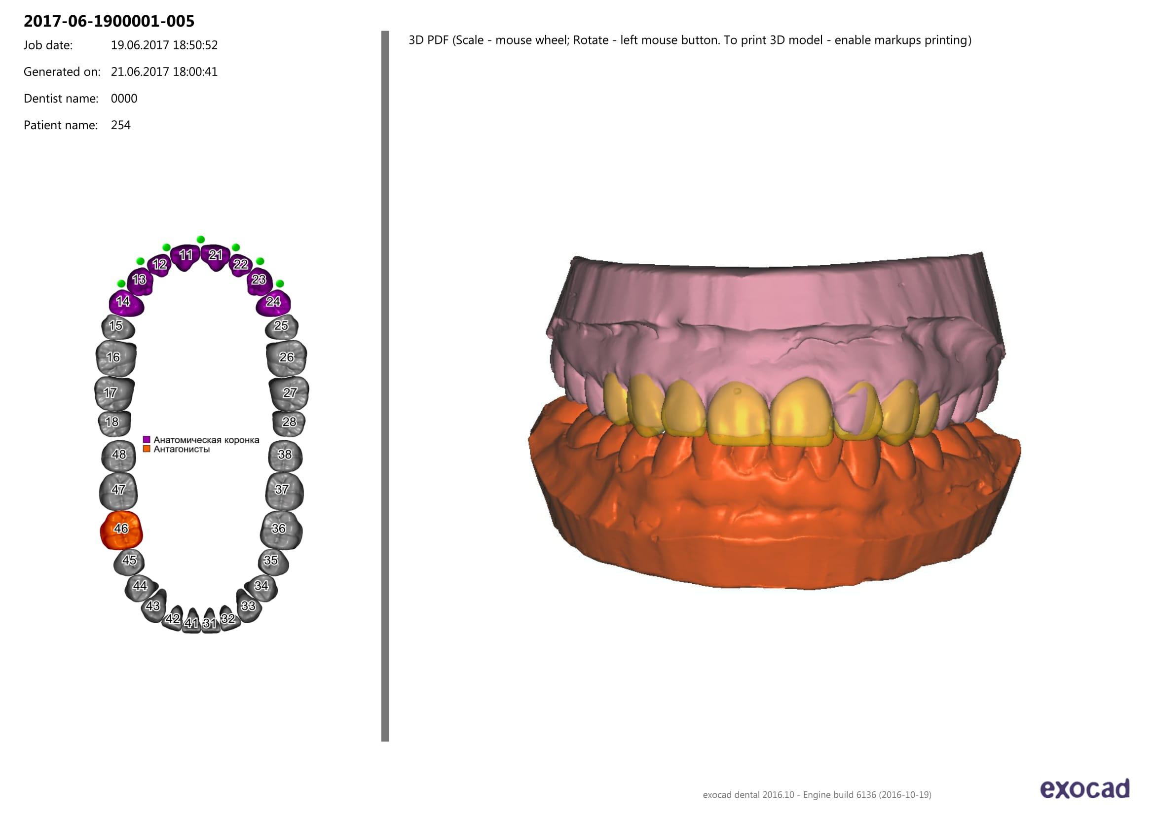 Wax-up и свои зубы
