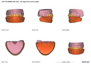 Wax-up и свои зубы- cfqn1-2