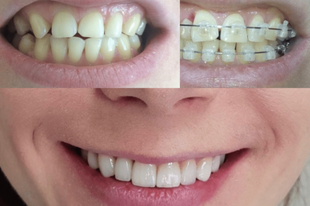 Выравнивание-зубов-бреет-системой-в-любом-возрасте-2