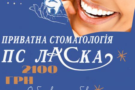 Отбеливание-зубов-4